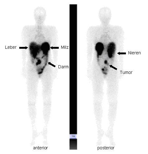 zwölffingerdarm tumor brunneriom